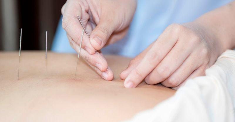 quantas sessões pode fazer de acupuntura na gravidez